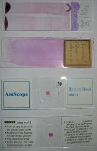 A variety of blood smears.