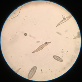 Model R Plerosigma angulatum 75x